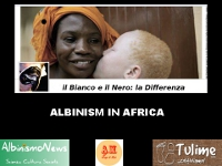video: Albinismo in Africa. Cosa significa