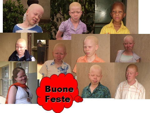 Uganda Albinos'Association