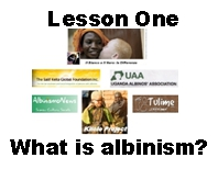 albinism lesson one